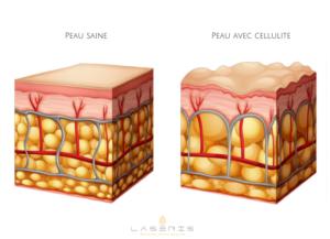 cellulite capitons peau d'orange laseris lausanne
