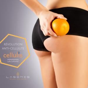 Traitement Cellulis anti-cellulite Laseris Lausanne