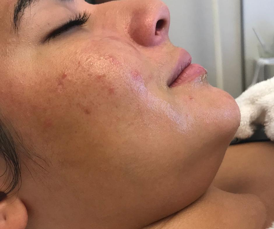 Acné sur jeune femme Laseris problèmes de peau, boutons, comédons, points noirs, cicatrices peelings skinceuticals dr perrenoud lausanne