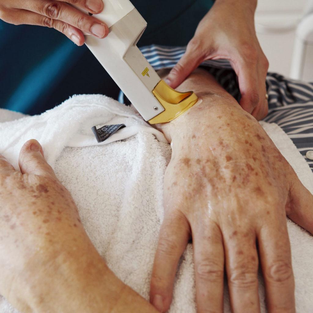 Traitement des taches de vieillesse et taches foncées brunes dues a l'age au centre laseris a lausanne avec le dr perrenoud, dermatologue