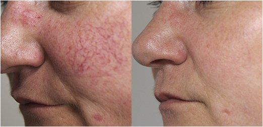 Dermatologie - couperose_avant-apres