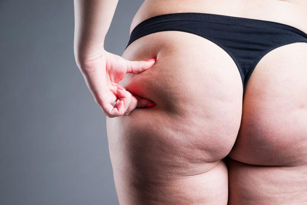 Cellulite fesses derrière les cuisses
